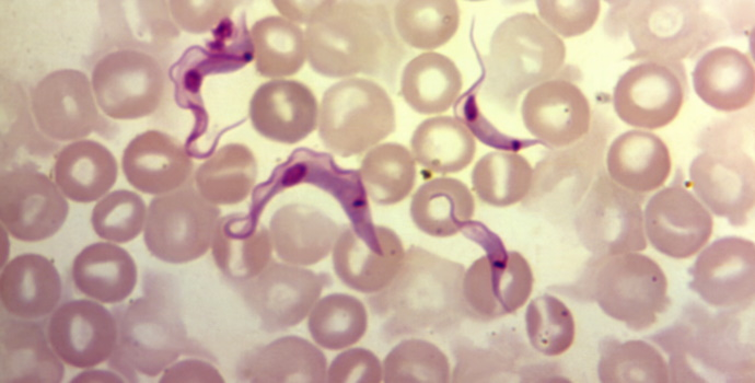 Parasites in blood